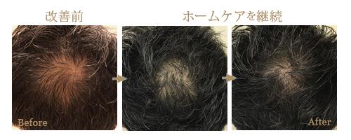 育毛や発毛ホームケア
